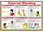 External bleeding treatment guide.